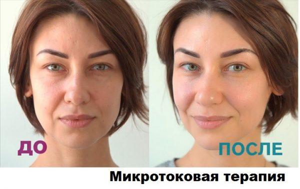 Лицо до и после применения микротоковой терапии