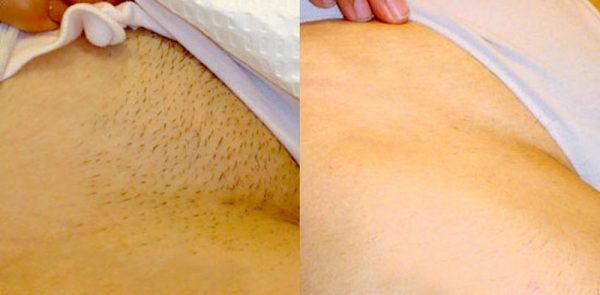 Фото до и после восковой депиляции бикини