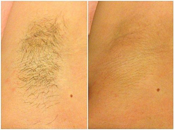 Фото подмышки до и после депиляции воском