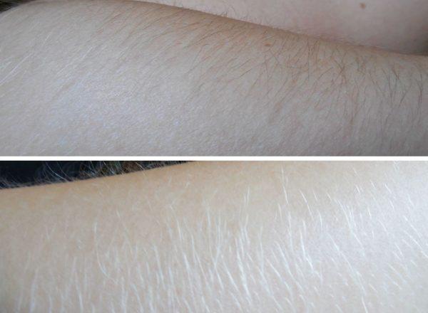 Фото рук до и после использования перекиси водорода