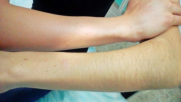 Лазерная эпиляция рук: фото до и после