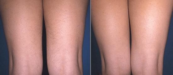 Ноги до и после депиляции