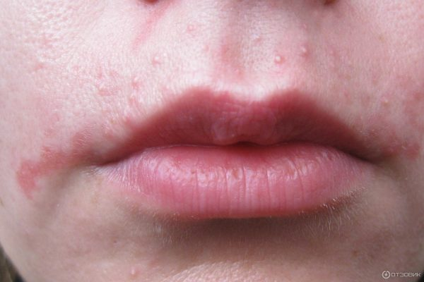 Раздражение на коже после использования восковых полосок