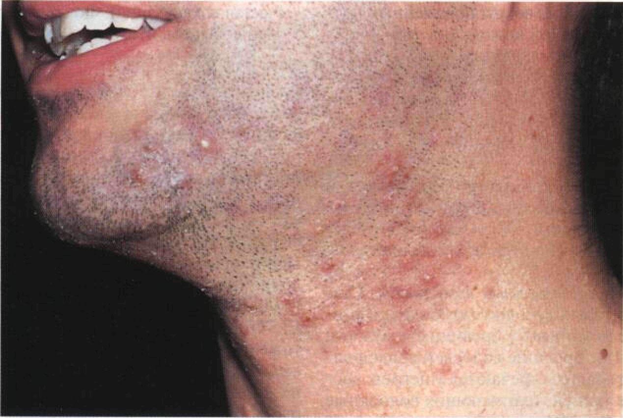 раздражение после бритья