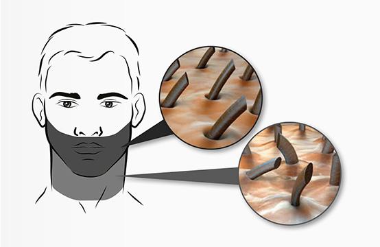 Разные зоны лица для бритья
