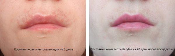 Состояние верхней губы после электроэпиляции