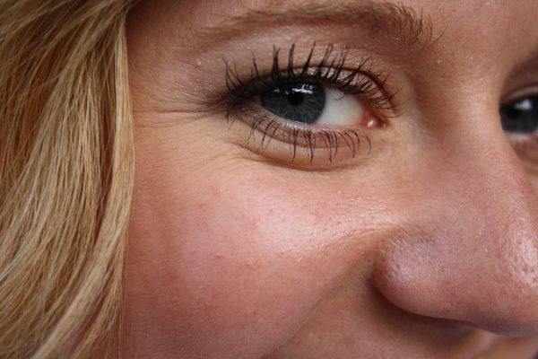 Старение кожи вокруг глаз