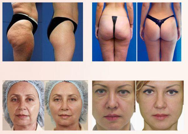Эффект от курса вакуумного массажа лица и тела