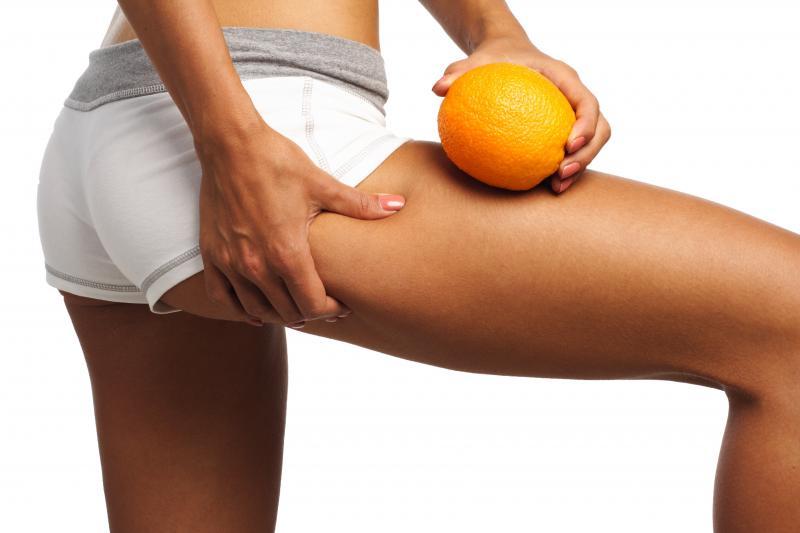 Синяки после антицеллюлитного массажа: норма или нет?