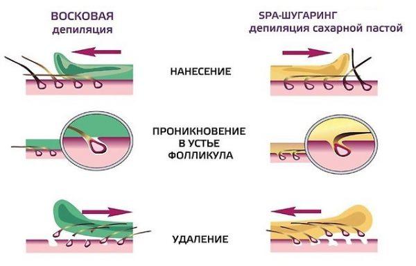 Схема депиляции волос воском и сахарной пастой
