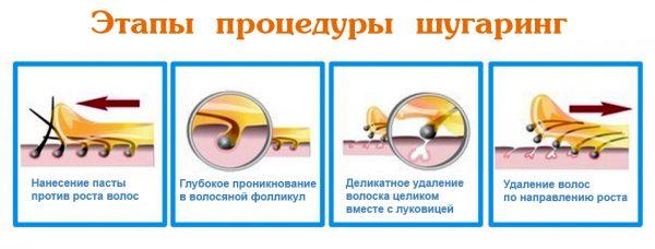 Этапы процедуры шугаринга
