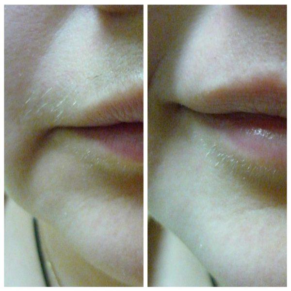 Фото до и после использования восковых полосок в области верхней губы
