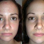 фото до и после пилинга ТСА