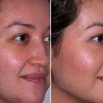 изменения кожи после пилинга тСА