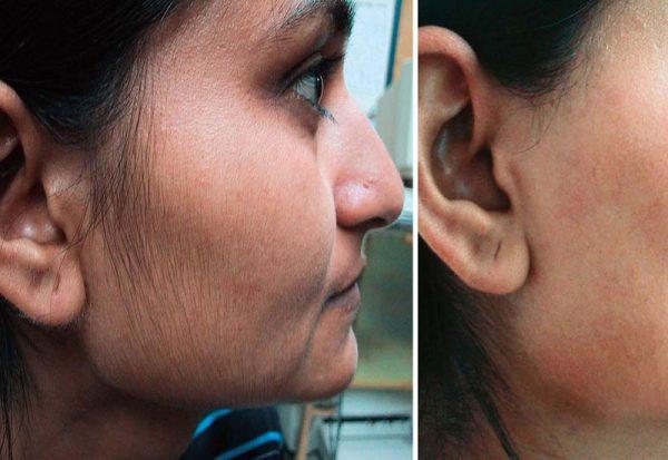 Фотоэпиляция лица девушки (до и после)