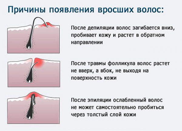 Схема образования вросших волос