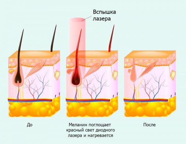 Лазер, волосы, инфракрасный свет (схематическое изображение)