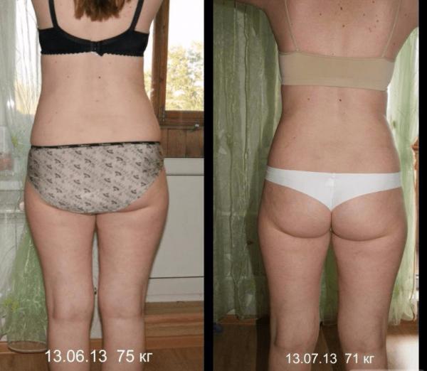 Аппаратный массаж: фото до и после