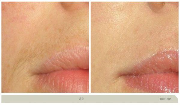До и после шугаринга усиков над верхней губой