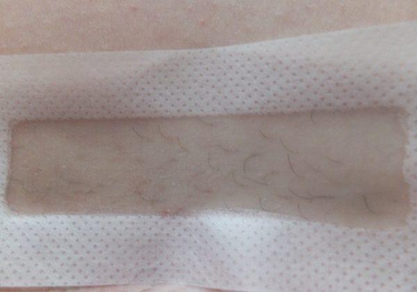 Наклеенная на кожу восковая полоска