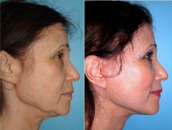 Лицо женщины до и после вживления нитей Аптос