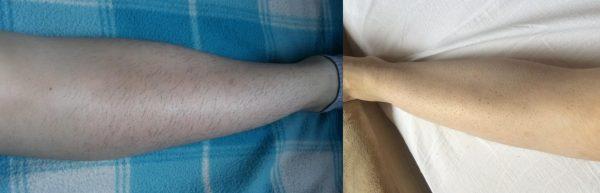 Нога до и после электроэпиляции