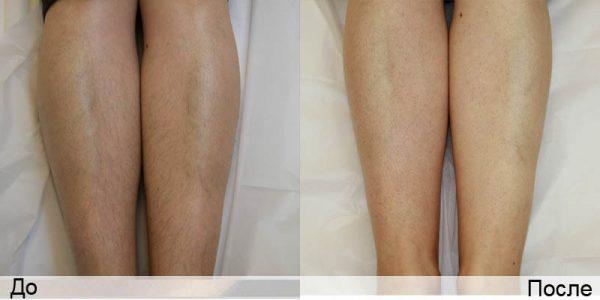 Ноги (до и после депиляции)