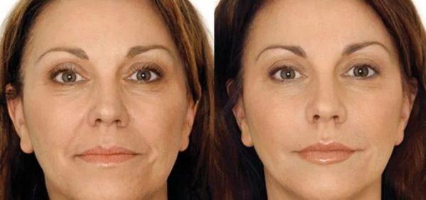 Омолаживающие маски с желатином: до и после