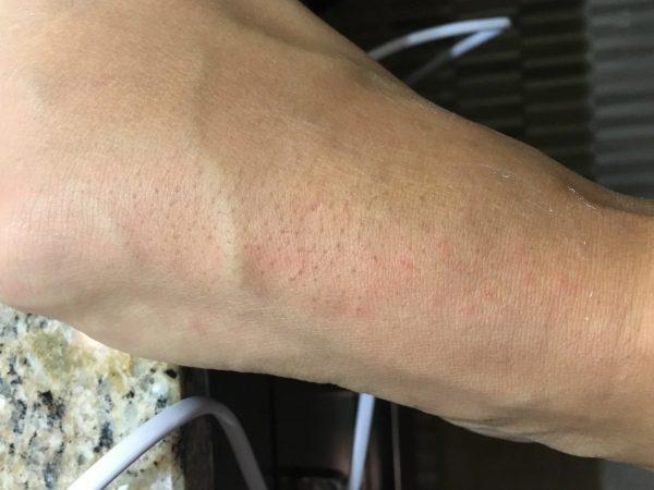 Нога после депиляции горячим воском