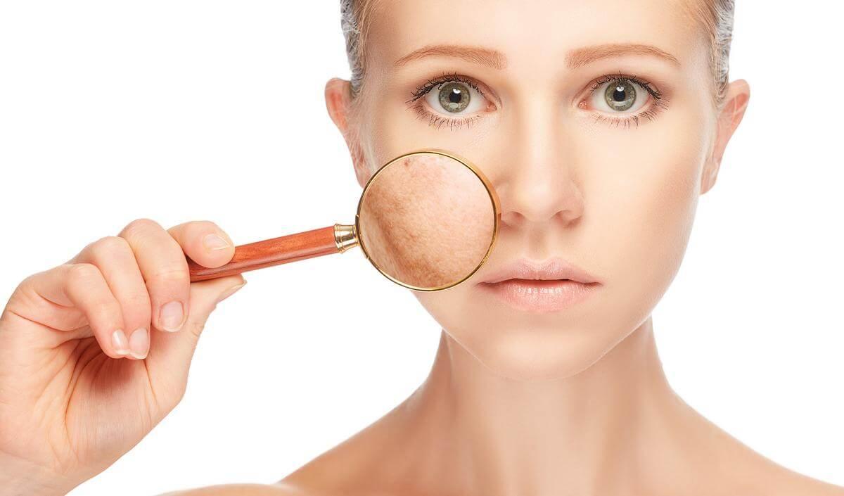 Как избавиться от пигментных пятен на лице: обзор эффективных методов