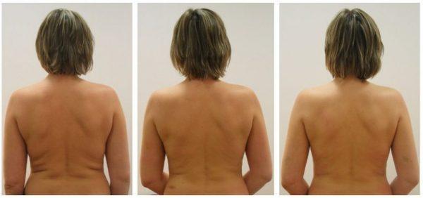 Результат лимфодренажа спины