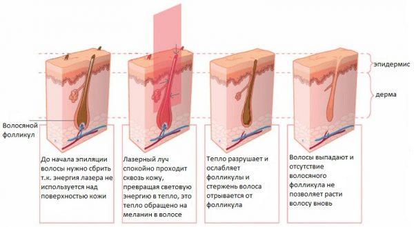 Схема воздействия лазера на фолликул