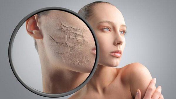 Сухая и обезвоженная кожа лица у девушки