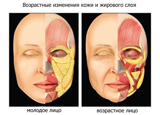 Распределение жировой клетчатки на лице в разном возрасте