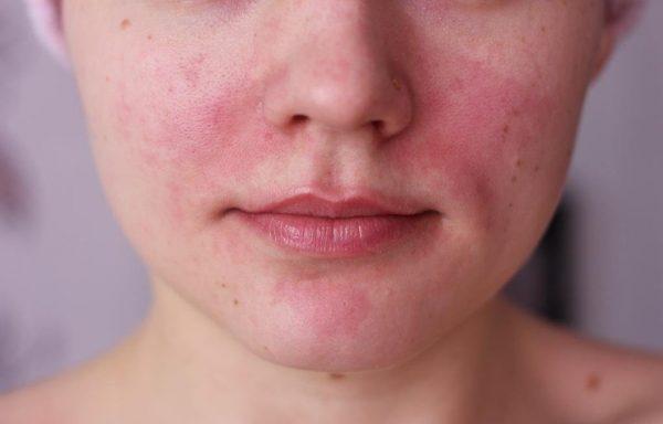 Чувствительная кожа лица у девушки