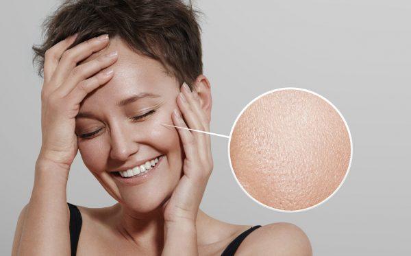 Девушка с короткой стрижкой и многократное увеличение участка кожи её лица с расширенными порами