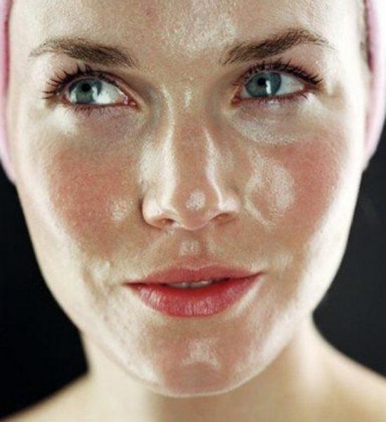Девушка с жирной кожей лица