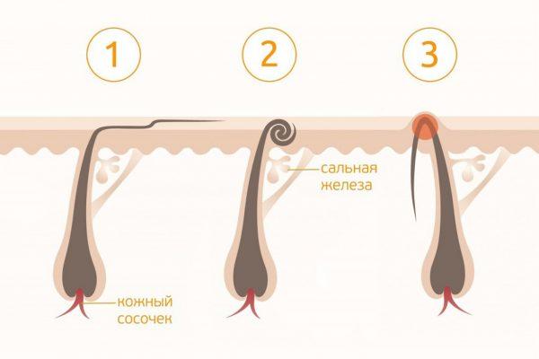 Виды вросших волосков