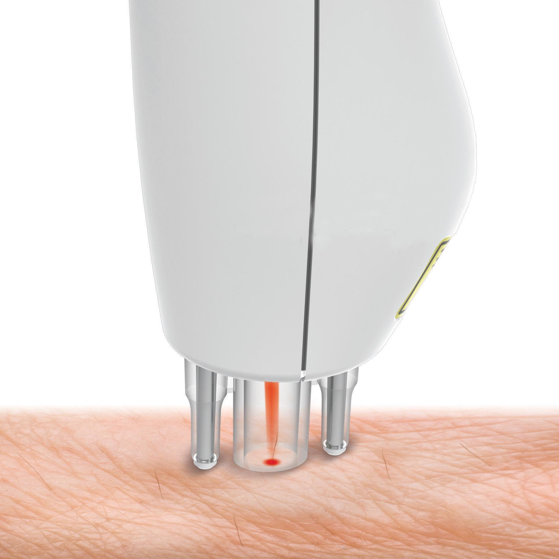Как выбрать и как пользоваться лазерным эпилятором для дома