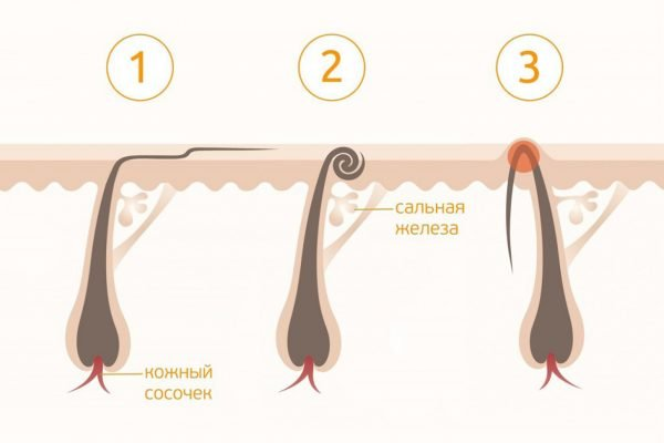 Виды вросших волос