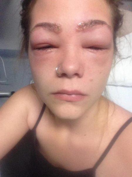 Аллергическая реакция на краситель для бровей