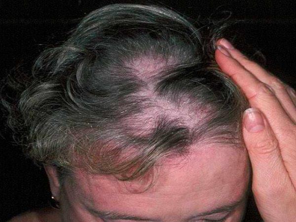 Женщина с редкими волосами