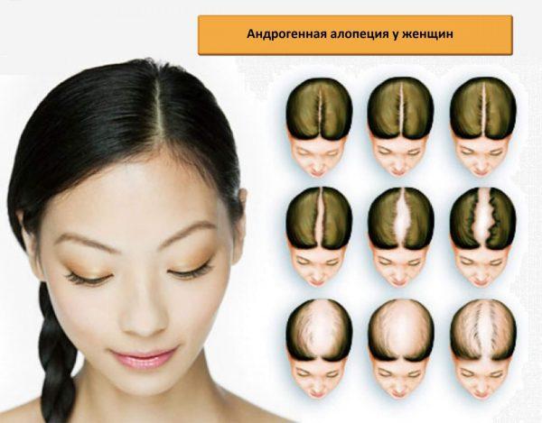 Стадии андрогенной алопеции у женщин
