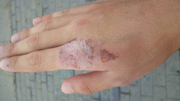 Проявления экземы на руке