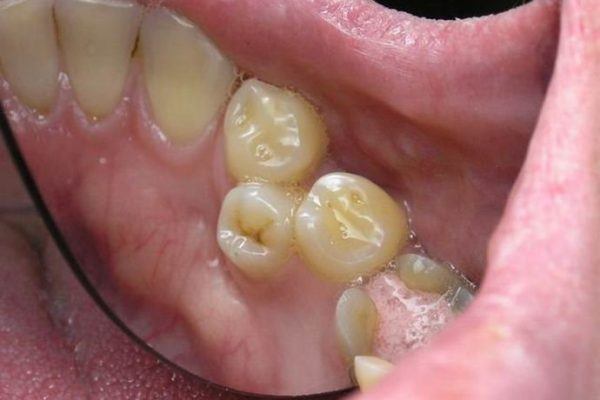Нестандартный зубной ряд