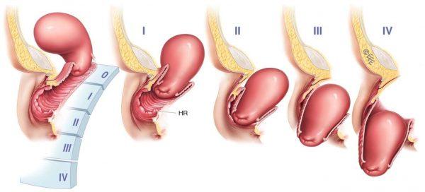 Нормальное состояние матки и 4 стадии её опущения