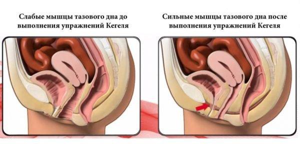 Мышцы до упражнений Кегеля и после