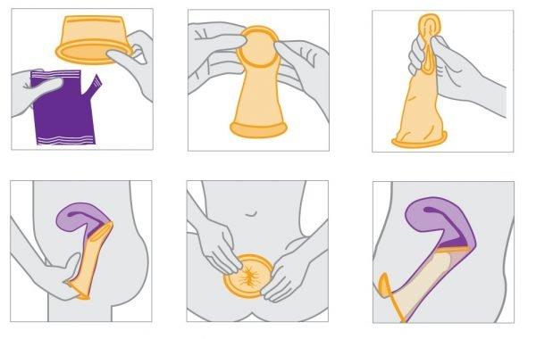 Инструкция по установке жеенского презерватива