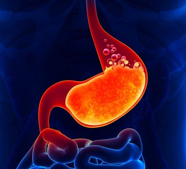 Воспаление желудка и 12-перстной кишки