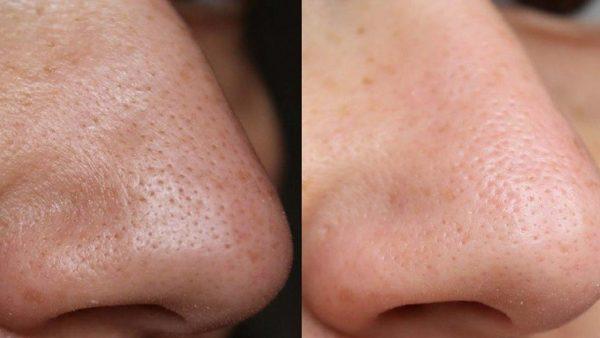 Результаты борьбы с чёрными точками на носу